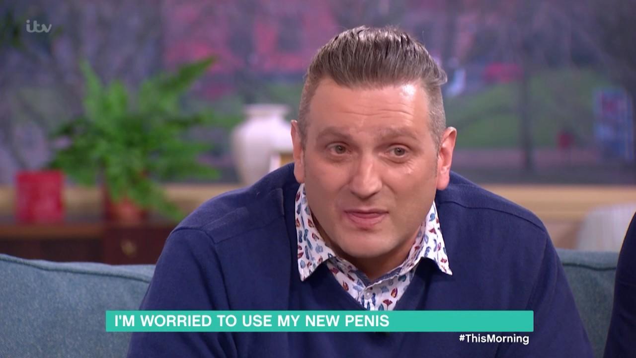 Acest bărbat s-a născut fără penis! A plătit de euro pe operaţie - KFetele