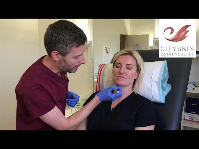 How to treat chin dimpling with anti-wrinkle injections