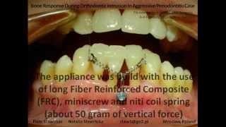 Orthodontic Intrusion In Aggressive Periodontitis