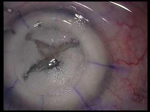 Deep anterior lamellar keratoplasty (DALK) in corneal dystrophy