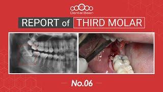 [ENG] Extraction of mesioangular Rt. Mn third molar [#Dentalbean]