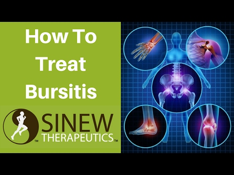 How To Treat Bursitis and Speed Recovery