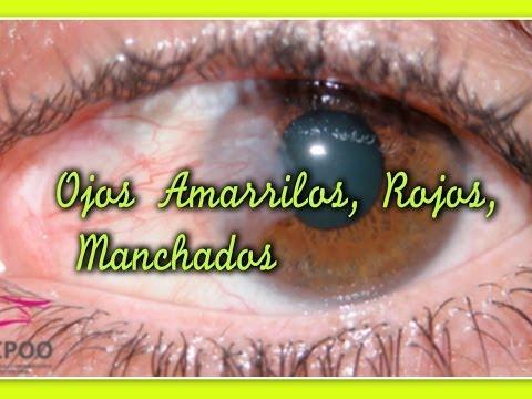Cuales son las causas de tener los ojos amarillos