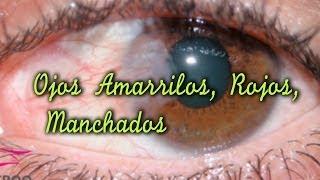 OJOS AMARILLOS / OJOS ROJOS/ MANCHAS EN LOS OJOS/ TRATAMIENTOS
