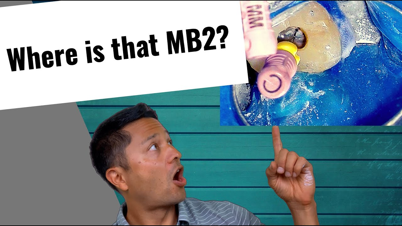 Download How to trough for MB2 (Maxillary Molar)