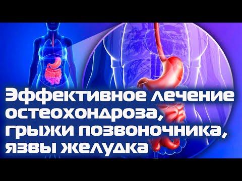 Грыжа позвоночника: методы лечения, где лечить грыжу за