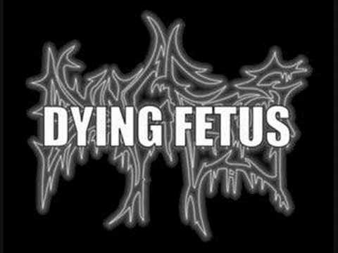 Raping the system-Dying Fetus mp3