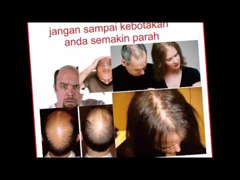 obat-penumbuh-rambut-botak-|-minyak-kemiri-asli-|-minyak-kemiri-aleurata
