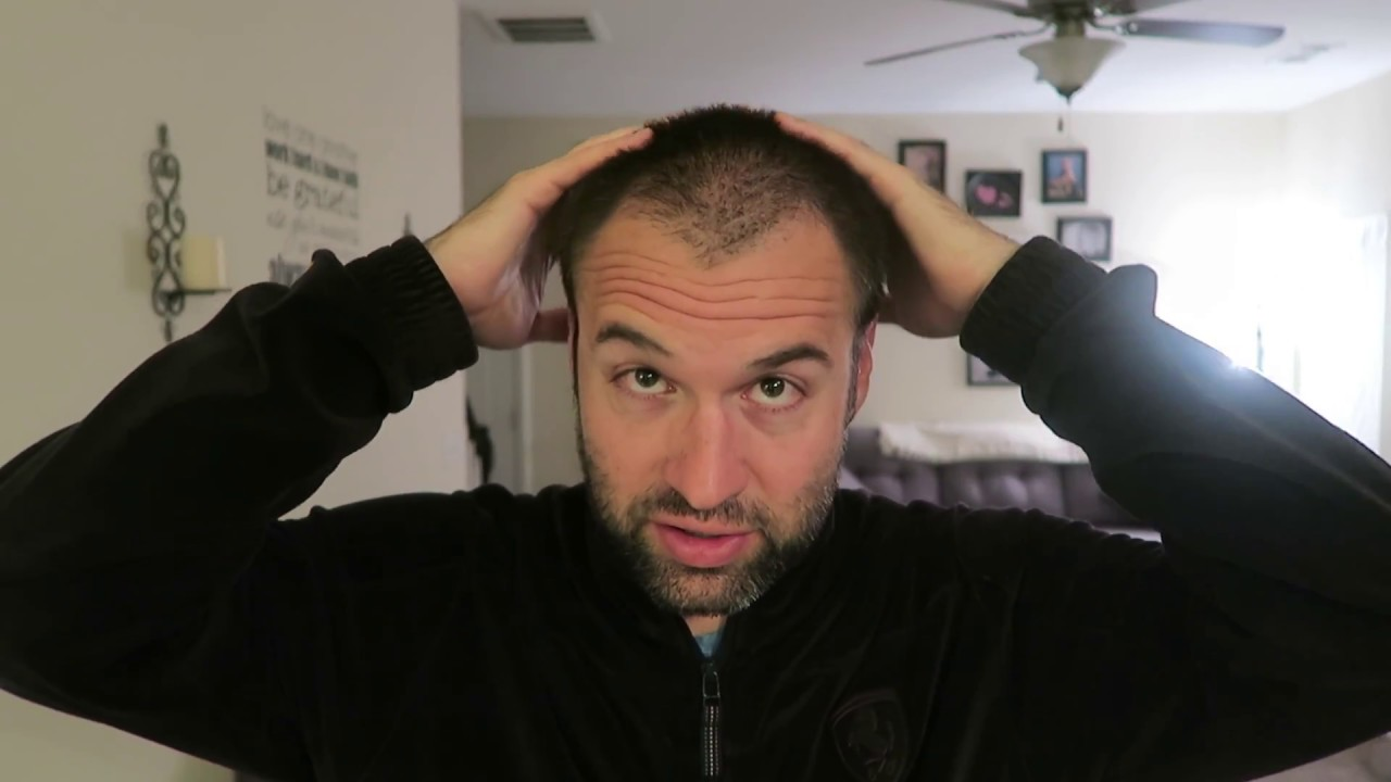 zero guard buzz cut for thinning hair: the hope of knowing i could go back  anytime