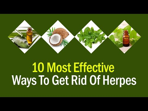 10 Most Effective Ways To Get Rid Of Herpes | Natural Herpes Treatment | Herpes Remedy