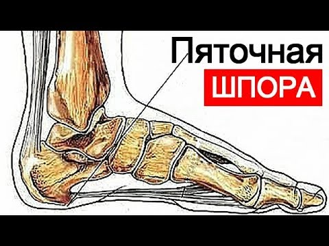 Воспаление века (блефарит) - лечение болезни. Симптомы и