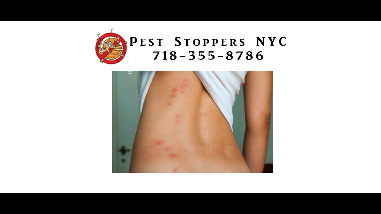 Bed Bug Exterminator Bronx Ny