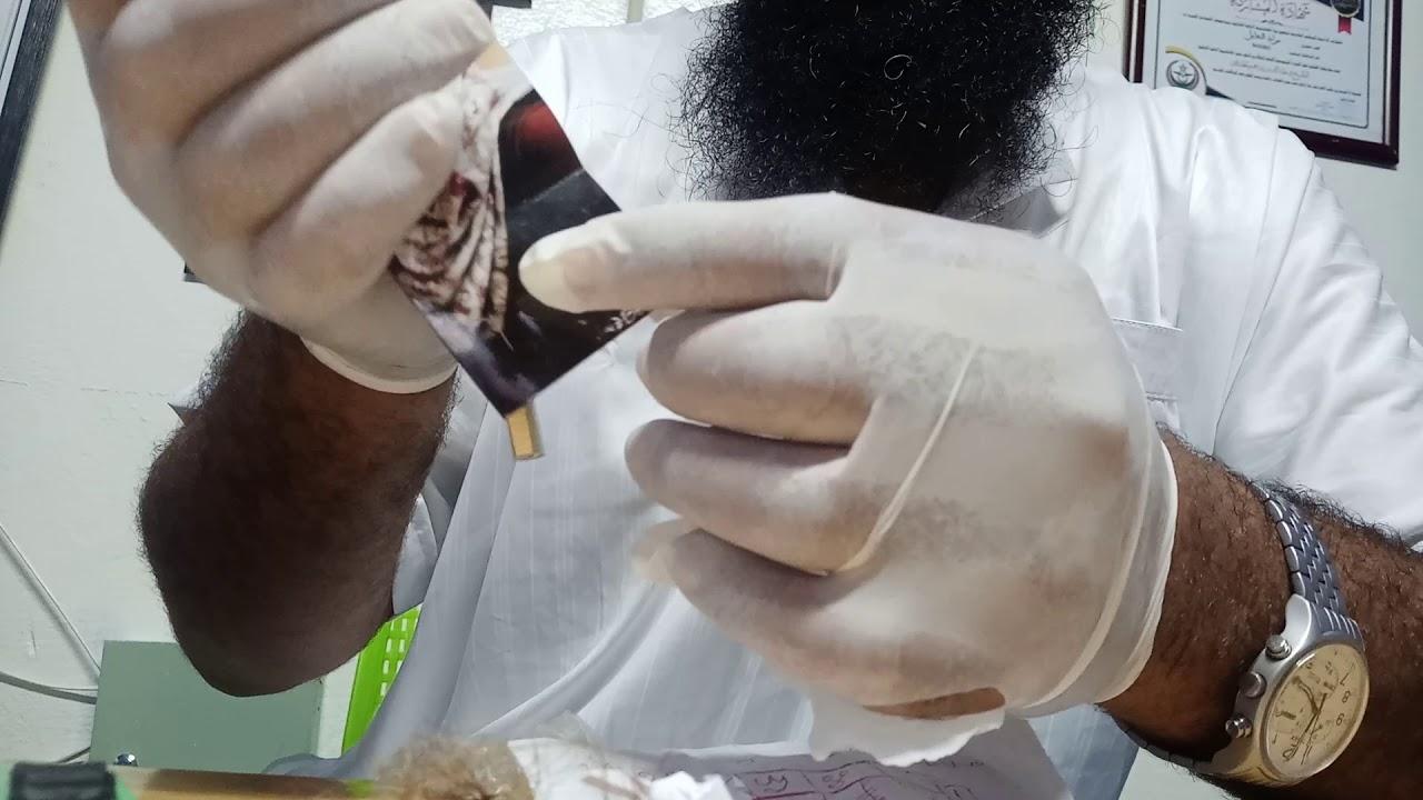فك السحر / مركز النور بمدينة آسفي / الراقي المغربي مراد ابو سليمان