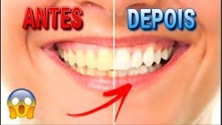 Como Clarear Os Dentes Com Bicarbonato