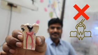 பல் எடுப்பதற்கு முன் இதை பாருங்கள்   Rootcanal treatment in tamil  Tamil vlogs Dr.Bala's vlog 