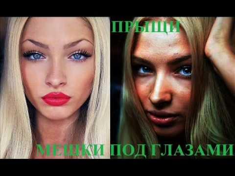 Избранница ТИМАТИ Алена Шишкова показала фото до пластики