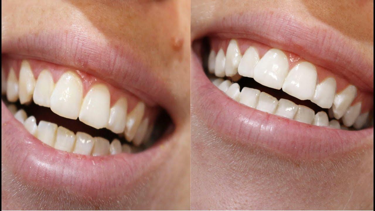 Dentes Brancos Com Casca De Banana Youtube