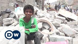 """القصف في صنعاء يزيد من معاناة فئة """"المهمشين""""   24-7-2015"""