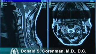 How to Read a MRI of the Normal Cervical Spine (Neck) | Colorado Spine Expert