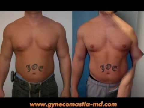 steroid gynecomastia surgery