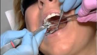Цифровая стоматология(Цифровая стоматология., 2013-09-29T14:52:01.000Z)