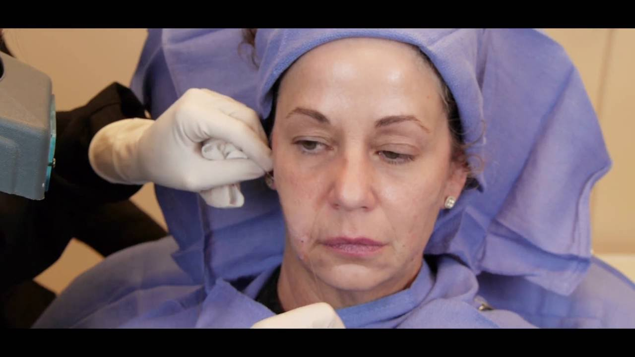 Watch dr sally booth perform a silhouette instalift procedure watch dr sally booth perform a silhouette instalift procedure sciox Images