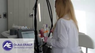Dermatolog Dr. Aslı Eralp Anlatıyor : Lazer Epilasyon 2