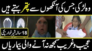 most amazing and surprising diseases and development in medical science in urdu hindi |the discovery