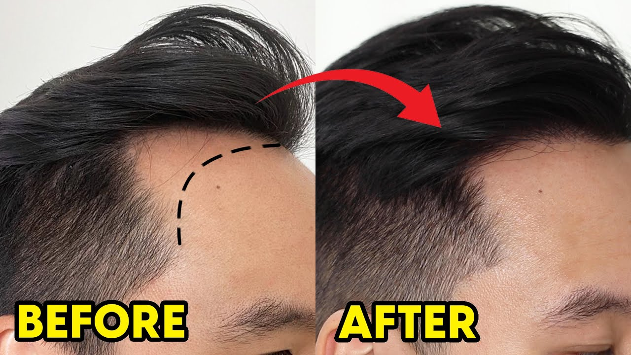 Download Hair Transplant Before & After - 1 Year Results