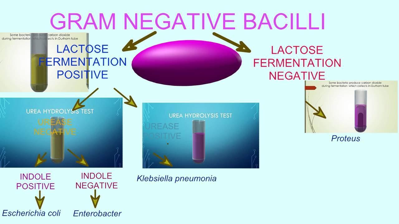 Flowchart of bacterial tests gram negative bacilli youtube flowchart of bacterial tests gram negative bacilli ccuart Images