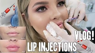 LIP INJECTIONS VLOG ♡ Jasmine Hand thumbnail