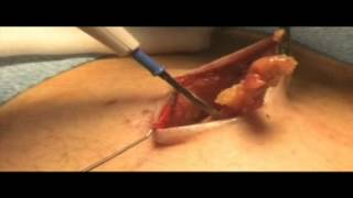 Repeat youtube video Inguinal Hernia - Surgery