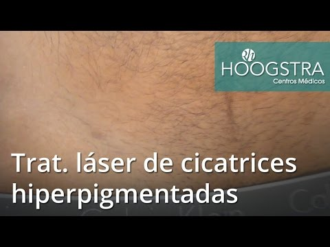 Tratamiento láser de cicatrices hiperpigmentadas (16069)