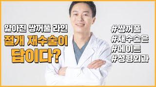 매몰법재수술이 있다?