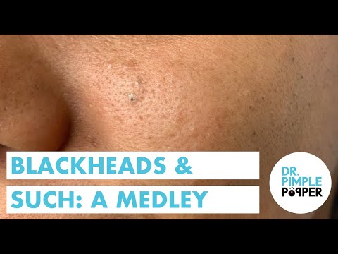 Dr Pimple Popper Pops Freckle Blackheads In Youtube Video