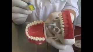Как отбелить зубы содой в домашних условиях(Рекомендации ведущего стоматолога Марины Спиридоновой касательно того, как отбелить зубы содой в домашних..., 2014-09-06T22:52:03.000Z)