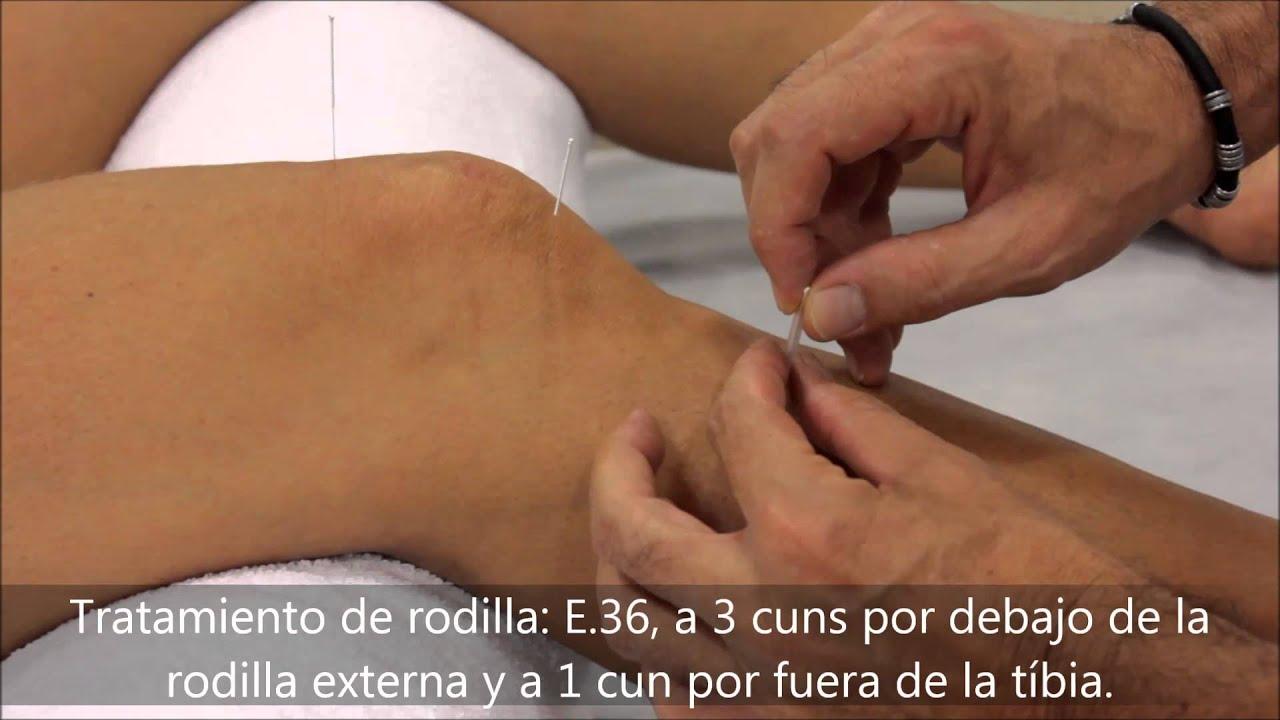 Acupuntura - Tratamiento de rodilla - YouTube