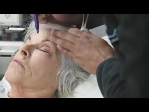 Guide to Upper and Lower Blepharoplasty at South Coast Plastic Surgery