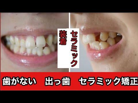 自分の写真を見て「歯並びひとつで笑顔もこんなに違うんだな」と感じました。