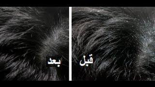 علاج قوي للتخلص من قشرة الرأس نهائيا