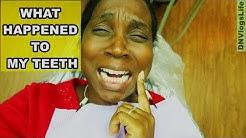 What Happened to My Teeth? Best Dentist in Houston Texas