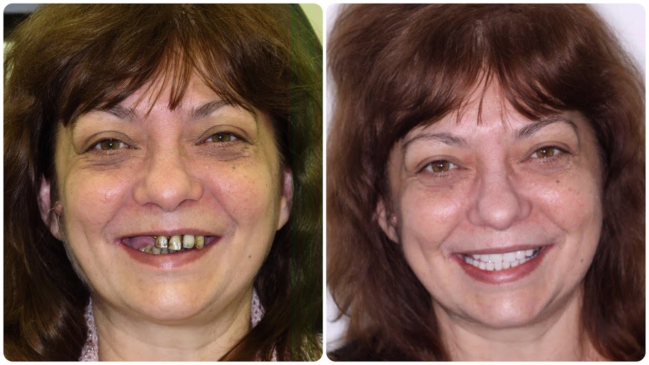 Permanent Teeth In 1 Day Dental Implants Non Removable
