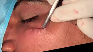 Facial Scar Treatment by Plastic Surgery and Dermabrasion in INDIA