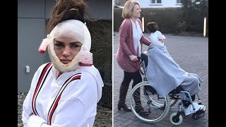 Katie Price shocks in wheelchair with bloody bandages and drainage tubes - 247 News