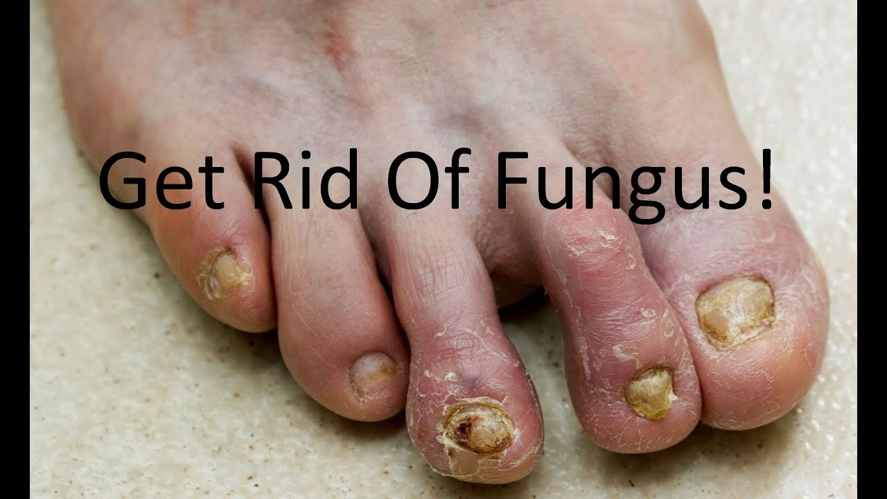 Listerine for Foot & Toenail Fungus - Complete Treatment Guide ...
