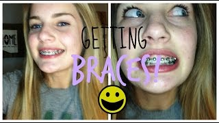 getting my braces on