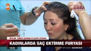 Kadınlarda saç ektirme furyası - 24.10.2015 - atv Ana Haber