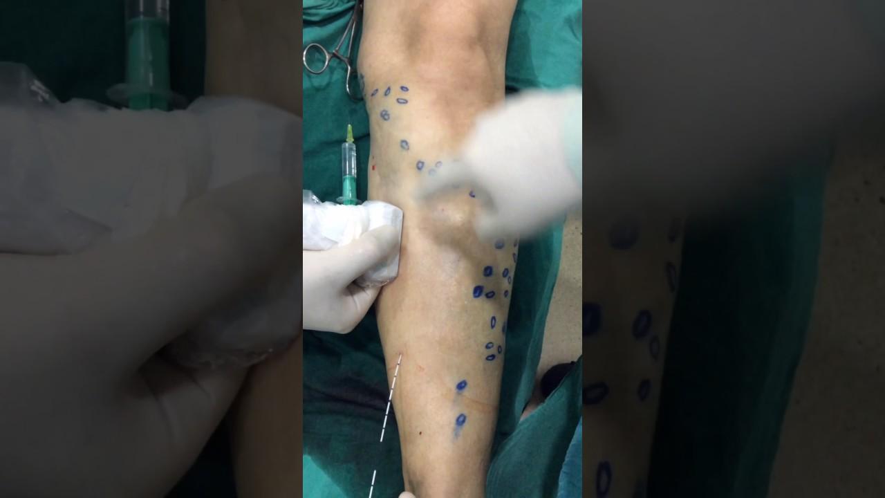 cum să fii tratat de la picioarele varicoase