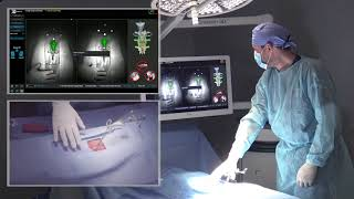 7D Surgical System – Spinal Workflow Demonstration