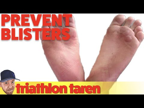 How to Avoid Blisters When Running